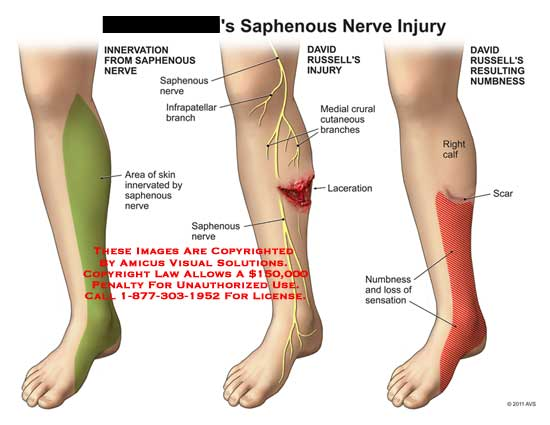 Infrapatellar branch of saphenous nerve