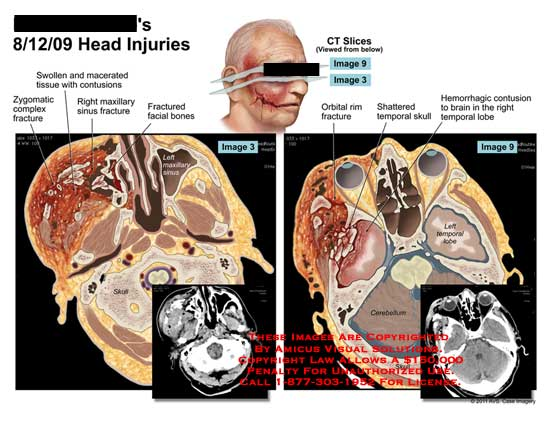 amicus,injury,head,injuries,CT,zygomatic,complex,fractured,swollen,macerated,tissue,contusions,maxillary,sinus,facial,bones,skull,orbital,rim,shattered,temporal,hemorrhagic,contusion,brain,temporal,lobe,cerebellum