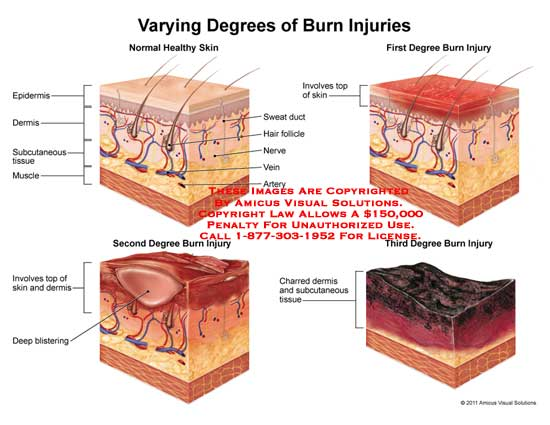 the different degree of burns Third-degree burns (full thickness burns) or steam come in contact with skin as a result of many different circumstances, including house fires.