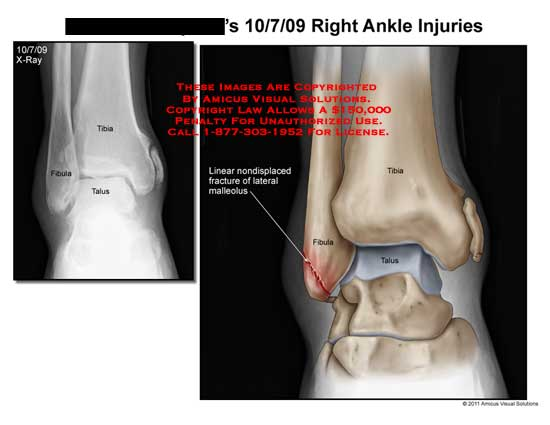 amicus,injury,ankle,tibia,fibula,talus,linear,nondisplaced,fracture,malleolus,x-ray,injuries