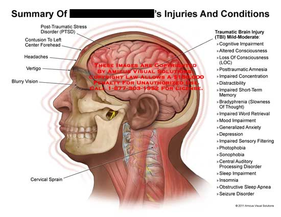 amicus,injury,summary,conditions,injuries,post-traumatic,stress,disorder,PTSD,contusion,forehead,headaches,vertigo,blurry,vision,cervical,sprain,traumatic,brain,injury,TBI,cognitive,impairment,altered,consciousness,loss,LOC,posttraumatic,amnesia,impaired,concentration,distractibility,short-term,memory,bradyphrenia,slowness,thought,word,retrieval,mood,impairment,generalized,anxiety,depression,sensory,filtering,photophobia,sonophobia,central,auditory,processing,disorder,sleep,insomnia,obstructive,