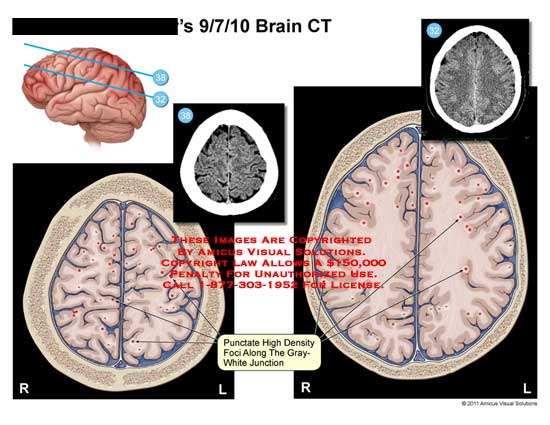amicus,injury,brain,CT,punctate,high,density,foci,along,gray-white,junction