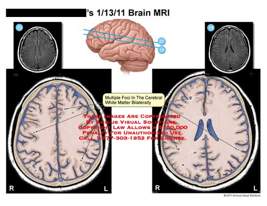 amicus,injury,brain,MRI,multiple,foci,cerebral,white,matter,bilaterally