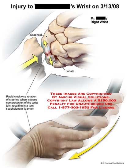 amicus,injury,wrist,scaphoid,lunate,clockwise,rotation,steering,wheel,compression,joint,resulting,torn,scapholunate,ligament