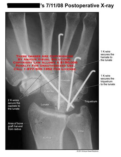 amicus,radiology,wrist,postoperative,x-ray,K-wires,secure,capitate,lunate,area,bone,graft,harvest,radius,hamate,triquetrum,ulna