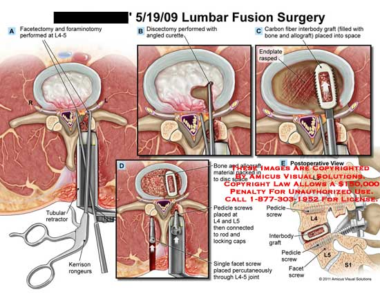 amicus,surgery,lumbar,spine,fusion,vertebrae,facetectomy,foraminotomy,L4-5,tubular,retractor,kerrison,rongeurs,discectomy,angled,curette,carbon,fiber,interbody,graft,bone,allograft,placed,space,endplate,rasped,material,packed,disc,pedicle,screws,L4,L5,connected,rod,locking,caps,facet,percutaneously,joint,