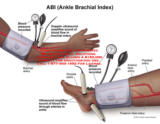 procedure of performing ankle brachial pressure index Proper pad assessment: understanding the ankle-brachial index  when performing ankle  mmhg pressure higher than the highest brachial pressure divide the ankle.