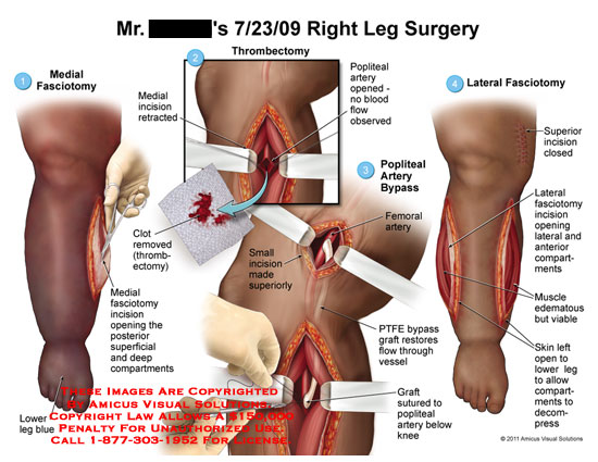 amicus,surgery,leg,fasciotomy,lower,blue,incision,opening,compartments,retracted,thrombectomy,popliteal,artery,opened,blood,flow,observed,bypass,femoral,PTFE,graft,restores,vessel,sutured,knee,muscle,edematous,viable,skin,decompress