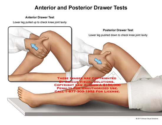11053_08X amicus illustration of amicus,medical,leg,drawer,tests,lower,pulled