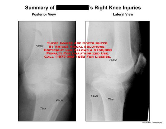 amicus,radiology,knee,femur,tibia,fibula,x-ray