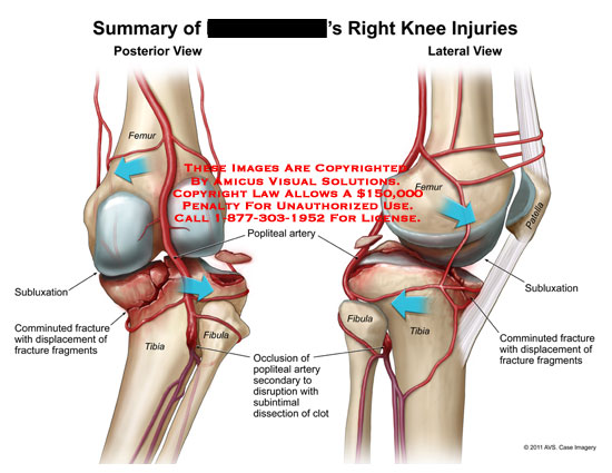 amicus,injury,knee,injuries,summary,femur,tibia,fibula,subluxation,comminuted,fracture,displacement,fragments,popliteal,artery,occlustion,secondary,disruption,subintimal,dissection,clot,patella,