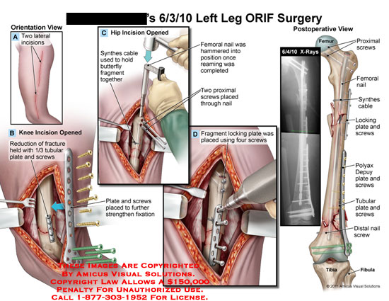 amicus,surgery,leg,ORIF,incisions,knee,opened,reduction,fracture,held,tubular,plate,screws,hip,synthes,cable,hold,butterfly,fragment,femoral,nail,hammered,position,reaming,completed,placed,through,strengthen,fixation,fragment,locking,synthes,cable,polyax,depuy,femur,tibia,fibula