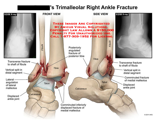 amicus,injury,ankle,fracture,trimalleolar,fibula,tibia,talus,calcaneus,x-ray,transverse,vertical,split,segment,angulation,malleolus,displaced,joint,angulated,comminuted