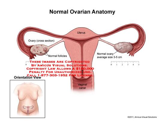 AMICUS Illustration of amicus,anatomy,ovary,ovarian,uterus ...