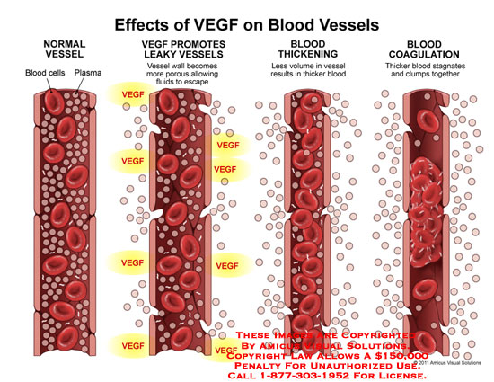 amicus,medical,effects,VEGF,vascular,growth,factor,blood,vessels,cells,plasma,promotes,leaky,wall,porous,fluids,escape,thickening,volume,less,thicker,coagulation,stagnates,clumps,together