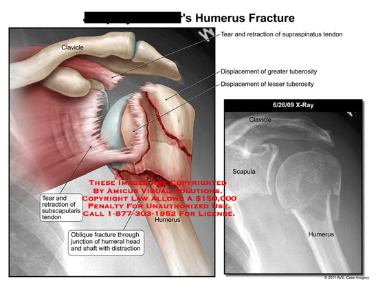 amicus,injury,humerus,fracture,clavicle,tear,retraction,subscapularis,tendon,oblique,junction,humeral,head,shaft,distraction,supraspinatus,displacement,tuberosity,scapula,x-ray