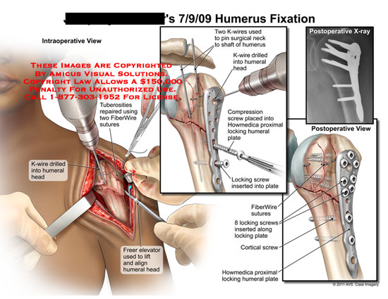 amicus,surgery,humerus,fixation,tuberosities,repaired,FiberWire,sutures,K-wire,drilled,humeral,head,freer,elevator,lift,align,pin,surgical,neck,shaft,drilled,compression,screw,placed,Howmedica,locking,cortical,plate
