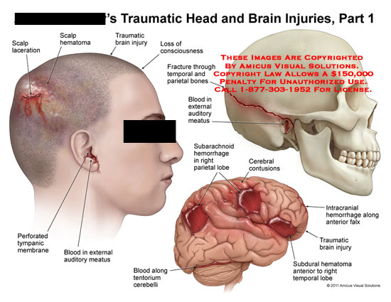 amicus,injury,head,injuries,traumatic,brain,part,1,scalp,laceration,hematoma,loss,consciousness,perforated,tympanic,membrane,blood,external,auditory,meatus,fracture,temporal,parietal,bones,subarachnoid,hemorrhage,parietal,lobe,cerebral,contusions,tentorium,cerebelli,intracranial,falx,subdural
