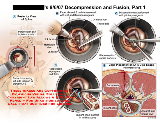amicus,surgery,lumbar,spine,decompression,fusion,part,1,vertebral,column,paramedian,skin,incisions,retractor,opening,expose,L4-5,facet,L5,pedicle,removed,drill,Kerrison,rongeurs,herniated,disc,rasps,prepare,endplates,nerve,root,thecal,sac,discectomy,performed,pituitary,blade,excise,annulus,implant,cage,inserted,space,placement,facectomy,allograft,infuse,BMP