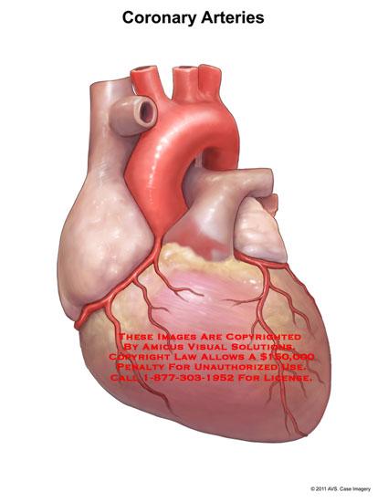 amicus,anatomy,heart,coronary,arteries,right,anterior,ventricular,artery,aorta,left,circumflex,marginal,diagonal,descending,interventricular