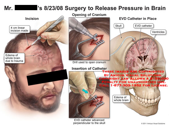amicus,surgery,brain,release,pressure,linear,incision,edema,trauma,opening,cranium,drill,insertion,catheter,EVD,advanced,perpendicular,skull,ventricles,