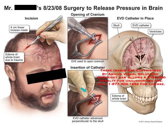 amicus,surgery,brain,release,pressure,linear,incision,edema,trauma,opening,cranium,drill,insertion,catheter,EVD,advanced,perpendicular,skull,ventricles,
