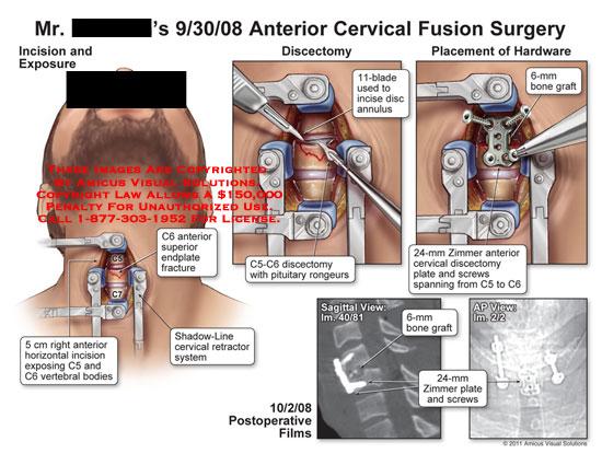 Anterior Cervical Fusion Surgery