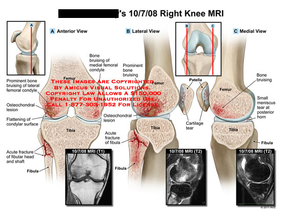 amicus,injury,knee,MRI,bone,bruising,femoral,condyle,femur,tibia,fibular,osteochondral,lesion,flattening,condylar,surface,fracture,head,shaft,patella,cartilage,tear,meniscus,horn