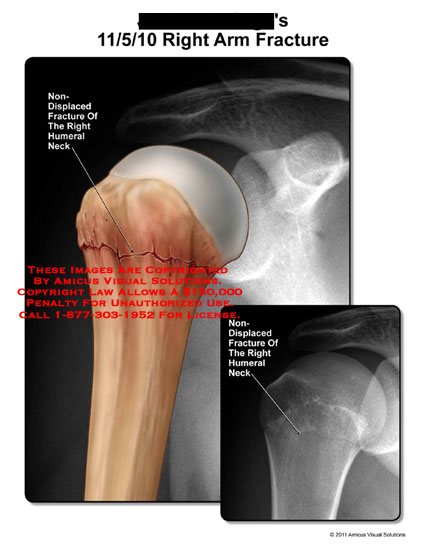 amicus,injury,arm,fracture,nondisplaced,humeral,neck