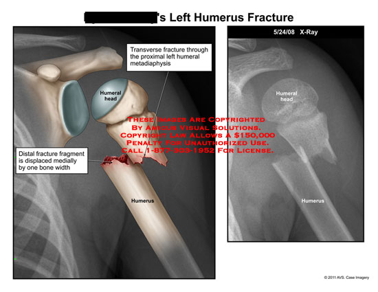 amicus,injury,arm,humerus,fracture,transverse,humeral,metadiaphysis,head,fragment,displaced,bone,width,x-ray
