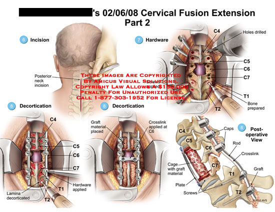 amicus,surgery,cervical,spine,fusion,extension,part,2,incision,hardware,holes,drilled,screws,applied,decortication,lamina,decorticated,graft,material,placed,crosslink,C6,caps,rod,cage,plate
