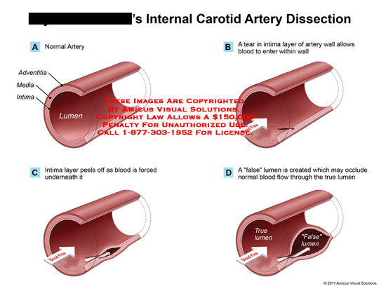 carotid vertebral artery dissection Cervical artery dissection (cead) corresponds to a hematoma in the wall of an  internal carotid or vertebral artery, and is a major cause of ischemic stroke in.