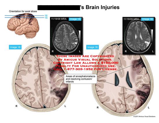 amicus,injury,brain,areas,encephalomalacia,resolving,contusion,infarcts