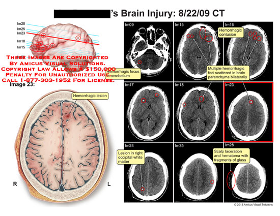 amicus,injury,brain,CT,hemorrhagic,lesion,focus,cerebellum,contusion,foci,scattered,parenchma,occipital,white,matter,scalp,laceration,hematoma,fragments,glass