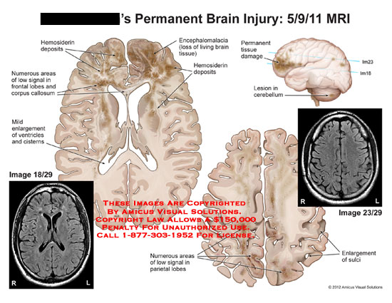 amicus,injury,brain,permanent,MRI,hemosiderin,deposits,areas,low,signal,frontal,lobes,corpus,callosum,enlargement,ventricles,cisterns,encephalomalacia,loss,living,tissue,damage,lesion,cerebellum,parietal,sulci
