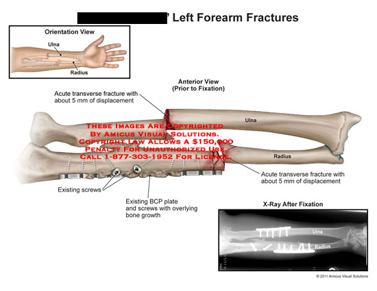 amicus,injury,forearm,fractures,ulna,radius,transverse,fracture,displacement,fixation,existing,screws,BCP,plate,overlying,bone,growth,x-ray