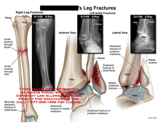 amicus,injury,leg,fractures,fibula,tibia,through,displaced,x-ray,malleolus,talus,