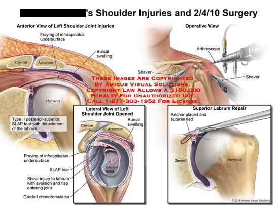 amicus,injury,surgery,injuries,shoulder,joint,fraying,infraspinatus,undersurface,clavicle,acromion,humerus,bursal,swelling,type,II,SLAP,tear,detachment,labrum,shear,avulsion,flap,entering,grade,I,chondromalacia,glenoid,process,shaver,arthroscope,repair,anchor,placed,sutures,tied,