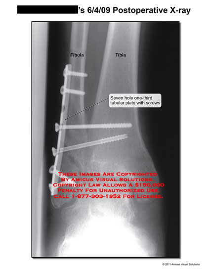 amicus,radiology,x-ray,postoperative,fibula,tibia,seven,hole,one-third,tubular,plate,screws