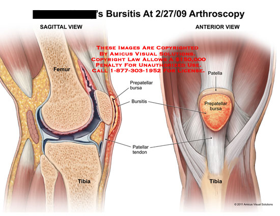 Diagram of the knee bursa auto wiring diagram today amicus illustration of amicus injury knee bursitis arthroscopy femur rh medicalexhibits com posterior knee bursa anatomy of the knee bursa sac ccuart