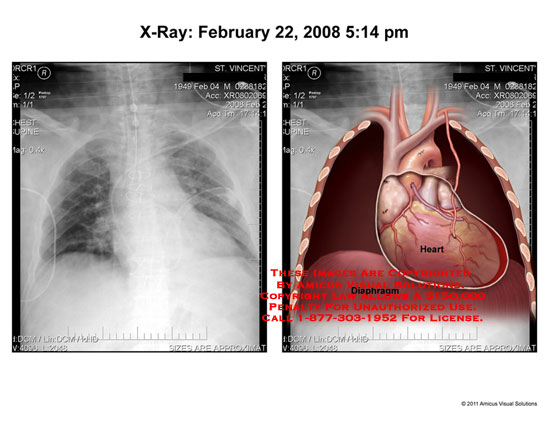 amicus,radiology,chest,cavity,x-ray,heart,diaphragm