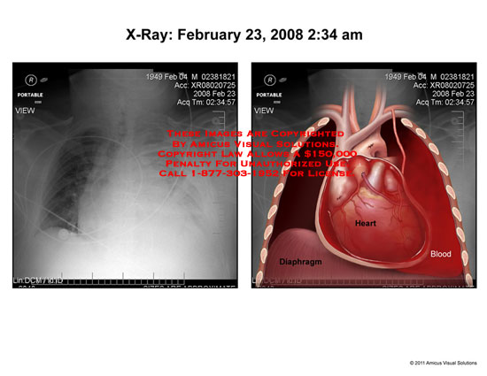 amicus,radiology,chest,x-ray,heart,diaphragm,blood