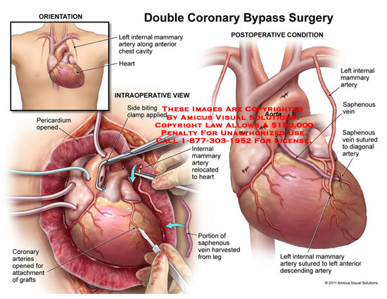 amicus,surgery,heart,double,coronary,bypass,internal,mammary,artery,chest,cavity,pericardium,opened,side,biting,clamp,applied,relocated,saphenous,vein,portion,harvested,leg,arteries,opened,attachment,grafts,aorta,sutured,diagonal,anterior,descending
