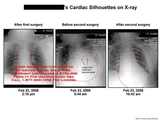amicus,radiology,heart,cardiac,silhouettes,x-ray,surgery,first,second,fluid,collection,around,aorta