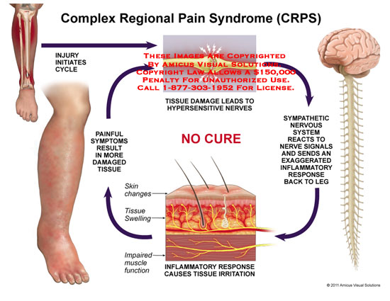 amicus,medical,complex,regional,pain,syndrome,CRPS,injury,initiates,cycle,painful,symptoms,result,damaged,tissue,leads,hypersensitive,nerves,sympathetic,nervous,system,reacts,signals,sends,exaggerated,inflammatory,response,irritation,impaired,muscle,function,swelling,skin,changes