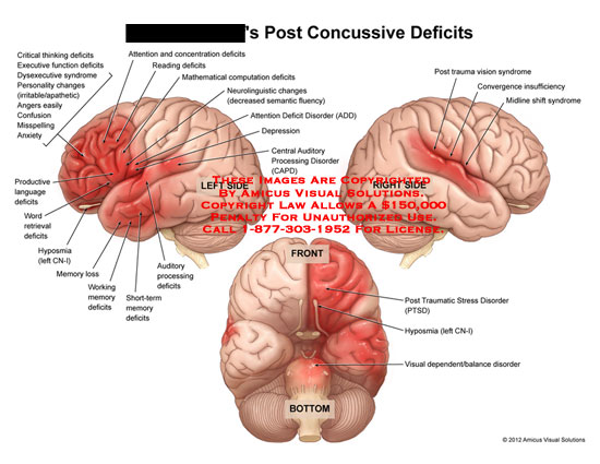 amicus,injury,head,post,concussive,deficits,critical,thinking,executive,function,dysexecutive,syndrome,personality,changes,irritable,apathetic,angers,easily,confusion,misspelling,anxiety,productive,language,word,retrieval,hyposmia,CN-1,memory,loss,working,short-term,auditory,processing,attention,concentration,reading,mathematical,computation,neurolinguistic,changes,semantic,fluency,disorder,ADD,depression,central,CAPD,trauma,vision,convergence,insufficiency,midline,shift,traumatic,stress,PTSD,vi