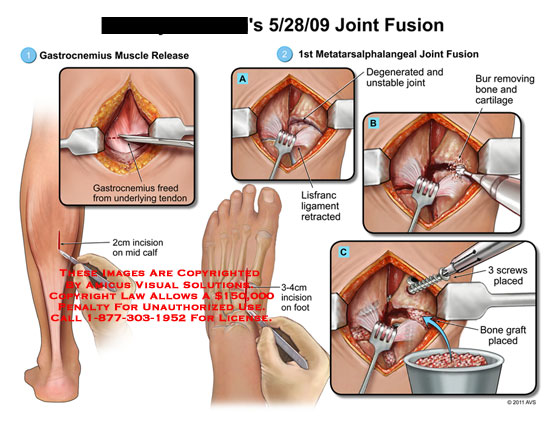 amicus,surgery,leg,joint,fusion,gastrocnemius,muscle,release,freed,underlying,tendon,incision,calf,1st,first,metatarsalphalangeal,degenerated,unstable,lisfranc,ligament,retracted,bur,removing,bone,cartilage,foot,screws,placed,graft