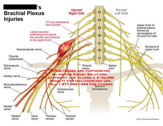 amicus,injury,brachial,plexus,injuries,side,C7,roots,edematous,avulsed,neuroma,extending,clavicle,divisions,upper,trunk,suprascapular,nerve,clavicle,collarbone,subscapular,axillary,musculocutaneous,radial,median,ulnar,thoracic,pectoral,subclavicular,phrenic,spinal,cord,sternum,breastbone,convergence,C5,C6