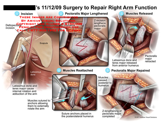 amicus,surgery,arm,repaired,function,incision,deltopectoral,humerus,scapula,teres,major,latissimus,dorsi,internal,rotation,adduction,arm,pectoralis,lengthened,z-incision,muscles,released,retracted,reattached,sutured,anchors,externally,rotate,placed,posterolateral,passed,z-lengthening,completed