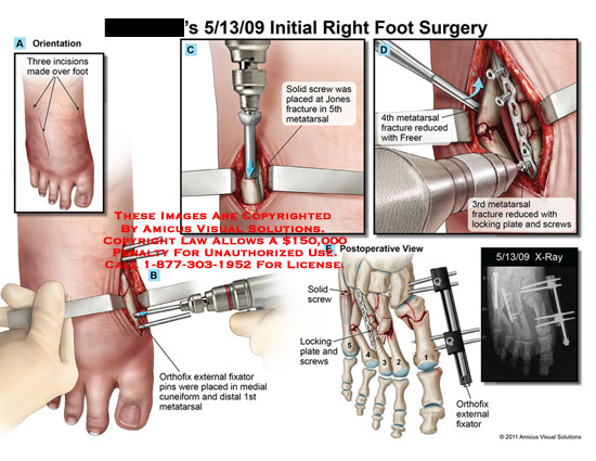 amicus,surgery,foot,incisions,orthofix,external,fixator,pins,placed,cuneiform,metatarsal,solid,screws,jones,fracture,reduced,Freer,locking,plate,x-ray